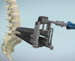 Lumbar, Rainer Technology