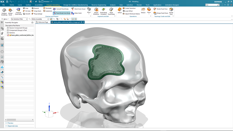 Siemens NX D3D 30 Cranial Patch